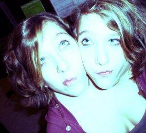siames_twins_05